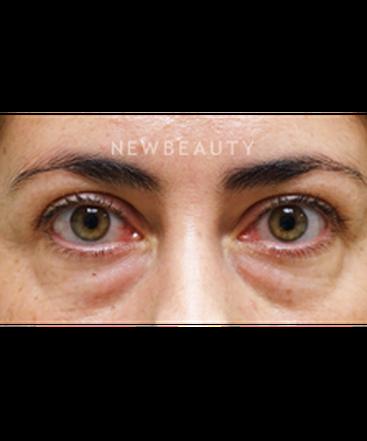 dr-raymond-douglas-eye-enhancement-b