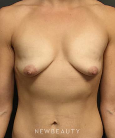 dr-irvin-m-wiesman-improved-shape-and-fullness-b