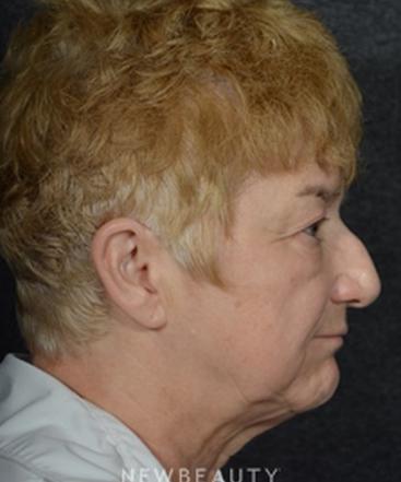 dr-ryan-chastant-rhinoplasty-b
