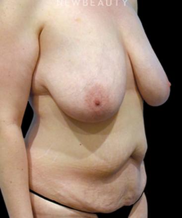 dr-vinod-v-pathy-tummy-tuck-and-breast-reduction-b