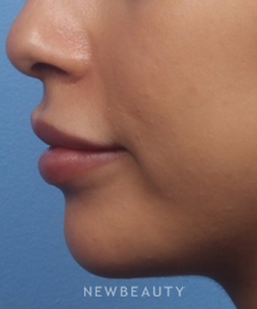 dr-kelly-bomer-chin-augmentation-b