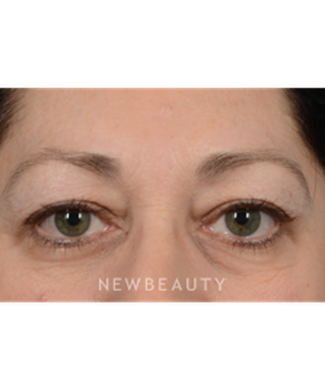 dr-jeffrey-wise-upper-blepharoplasty-b