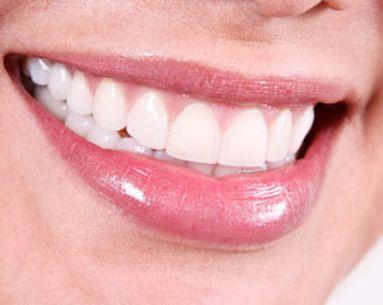Dental Fact Vs. Fiction