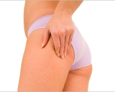 What'S The Deal With Cellulite?