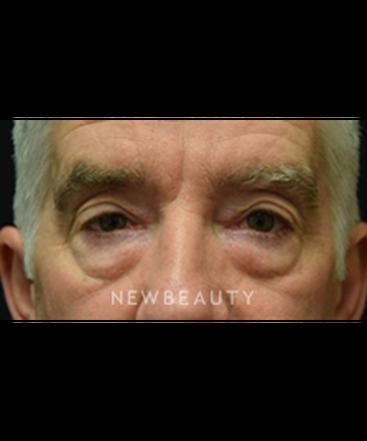 dr-jeffrey-b-wise-eyelift-b