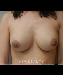 dr-alan-chen-breast-augmentation-b