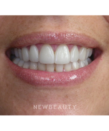 dr-irene-grafman-smile-makeover-b
