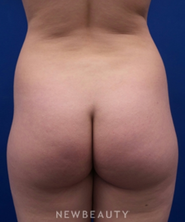 dr-kevin-tehrani-laser-liposuction-b