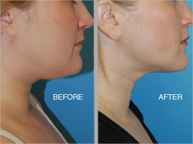Image of: Ask An Expert Say Goodbye To Stubborn Neck Fat Newbeauty Ask An Expert Say Goodbye To Stubborn Neck Fat Face Dailybeauty