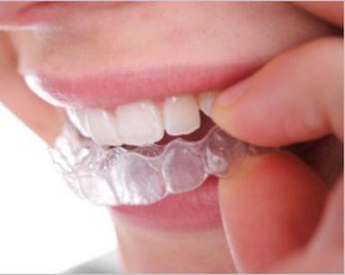 Straighten Teeth...Even Speedier