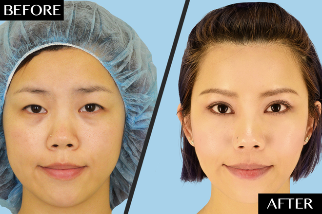 Asian Double Eyelid Surgery Cases Cosmetic Treatments