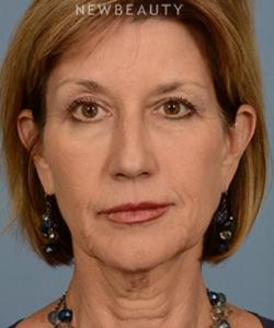 dr-bryan-w-gawley-facial-rejuvenation-b