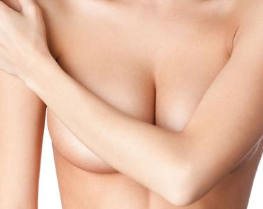 Ask An Expert: Will I Need a Breast Lift When I Get a Breast Reduction?