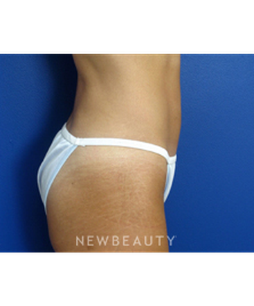 dr-joseph-russo-liposuction-b