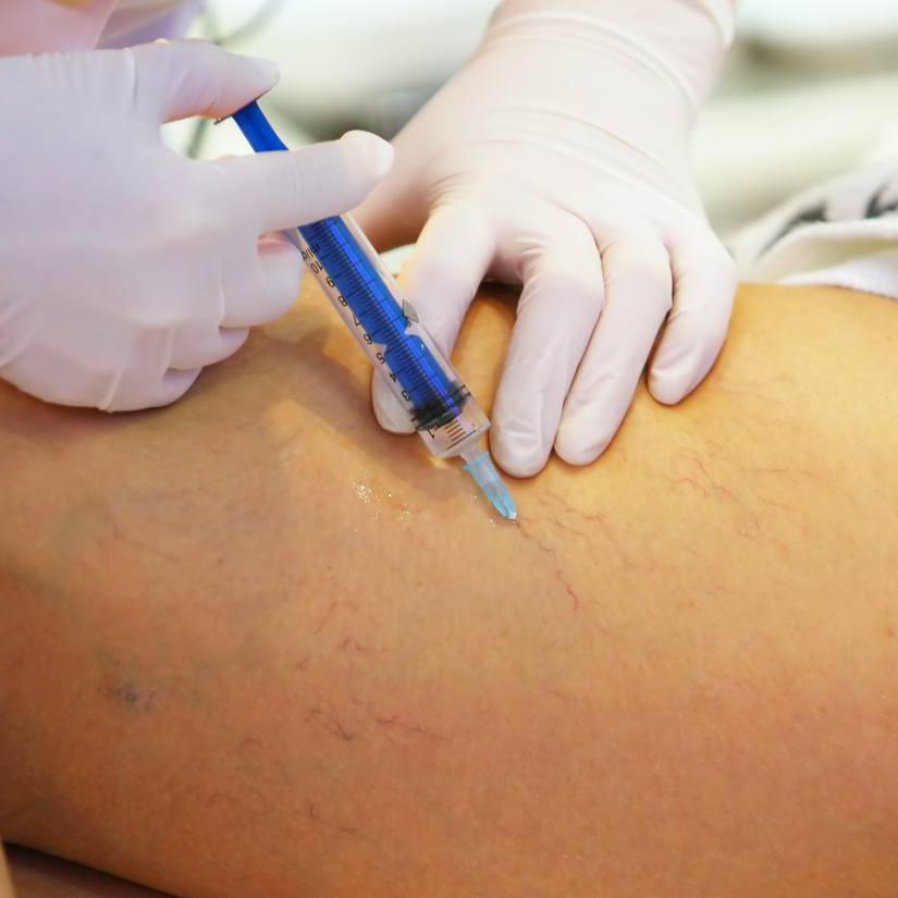 Expert-Approved Ways to Treat Visible Leg Veins - NewBeauty