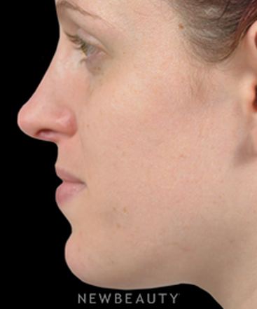 dr-james-marotta-rhinoplasty-b
