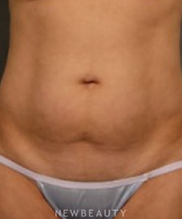 dr-aviva-preminger-liposuction-b