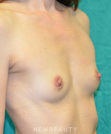 dr-b-aviva-preminger-breast-augmentation-b