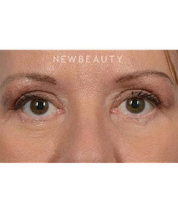 dr-jeffrey-wise-upper-and-lower-blepharoplasty-b