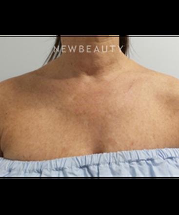 dr-marina-peredo-skinfluence-trinity-treatment-b