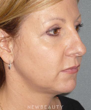 dr-davis-nguyen-facelift-necklift-b