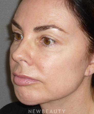 dr-davis-nguyen-facelift-necklift-chin-augmentation-b