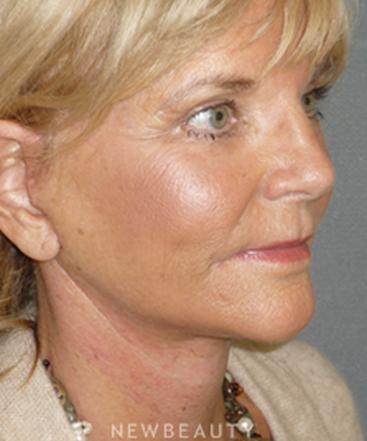 dr-davis-nguyen-facelift-necklift-browlift-lasers-b