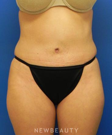 dr-sarah-mcmillan-liposuction-tummy-tuck-b