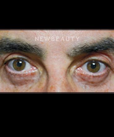 dr-baljeet-purewal-blepharoplasty-b