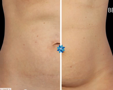A Top Dermatologist Explains How CoolSculpting Really Works