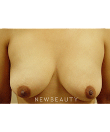 dr-kevin-tehrani-breast-augmentation-b