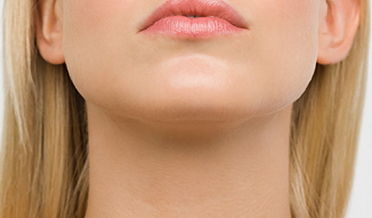 Chin Augmentation 473f9003 MEDIUM 24624555