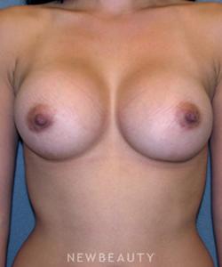 dr-sean-simon-breast-augmentation-b