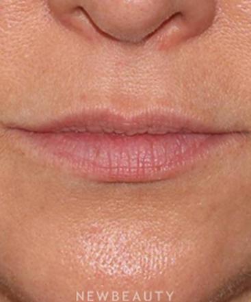dr-mitchell-ross-lip-filler-b