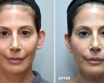 An Innovative Nonsurgical Procedure That Instantly Lifts The Midface and Provides Volume Over Time