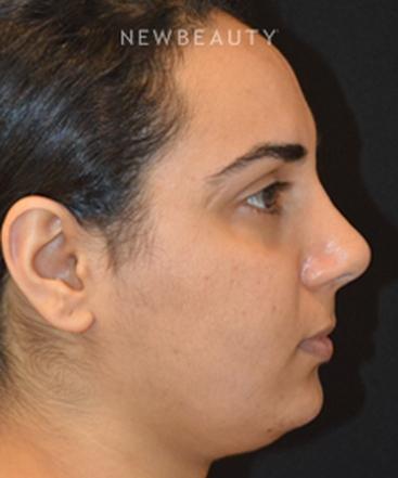 dr-cynthia-m-poulos-rhinoplasty-b