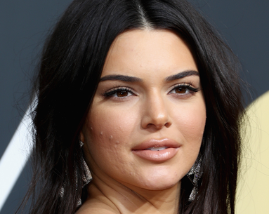 Kendall Jenner Walked the Red Carpet With Acne and Haters Had a Lot to Say