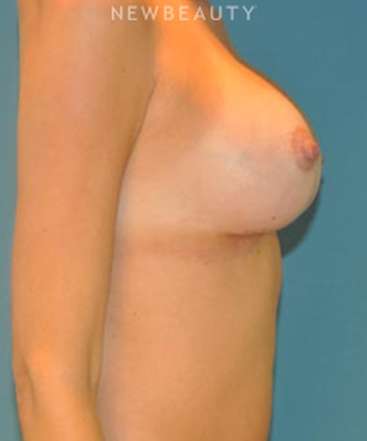 dr-alan-j-durkin-breast-implants-b