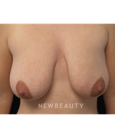 dr-linda-l-swanson-breast-augmentation-breast-lift-b
