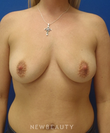 dr-matthew-endara-breast-implants-b