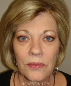 dr-sanjay-grover-facelift-browlift-neck-lift-eyelift-b