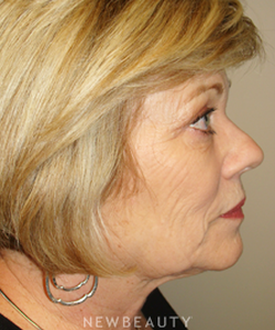 dr-sanjay-grover-facelift-browlift-neck-lift-eyelift-b