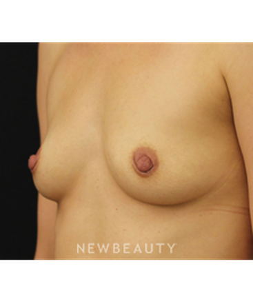 dr-daniel-maman-breast-augmentation-b