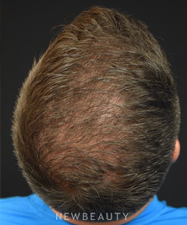 dr-jeffrey-rapaport-hair-transplant-b