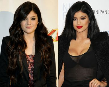 7 Celebrities Who Aren't Afraid To Share Their Cosmetic Procedures