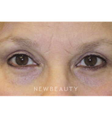 dr-stafford-r-broumand-eye-rejuvenation-b