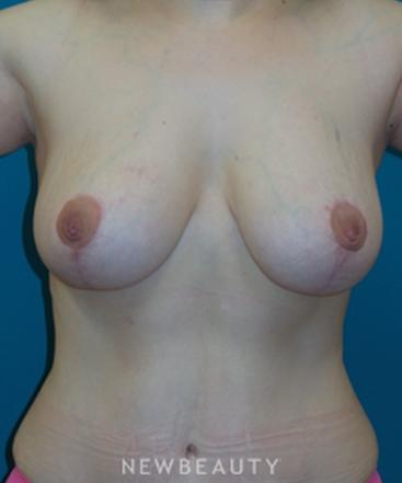 adam-hamawy-breast-list-b
