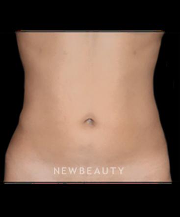 dr-hooman-khorasani-liposuction-b