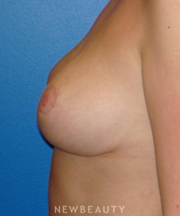 dr-sarah-mcmillan-breast-reduction-b