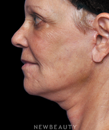 dr-alan-durkin-limited-incision-facelift-b